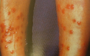 Bade-Dermatitis